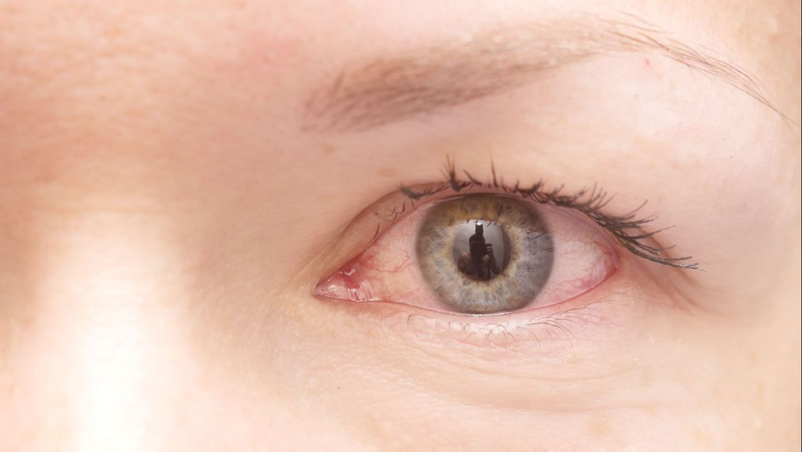 a close up of an irritated and inflamed eye that is red and bloodshot possibly with uveitis